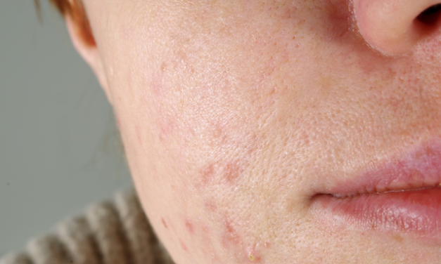 Acne Sufferers Actually Age More Slowly