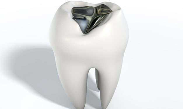The Truth About Silver Fillings