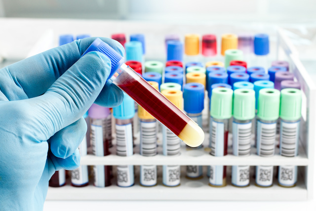New Blood Test May Predict Heart Attack